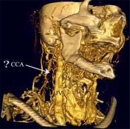 TAC angiograma