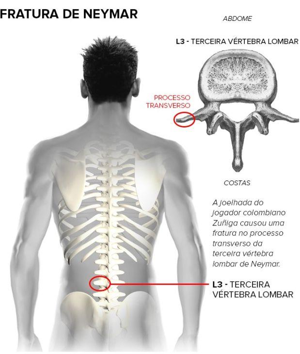 Fracturas vertebrales y manejo terapéutico – RhbNeuromad