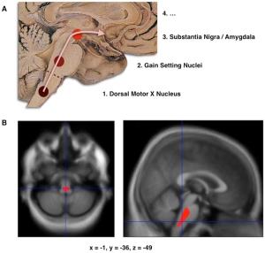 Sustancia negra-Amigdala en Parkinson