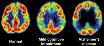 enfermedad_Alzheimer_demencia