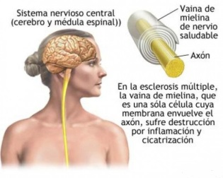 Esclerosis-múltiple